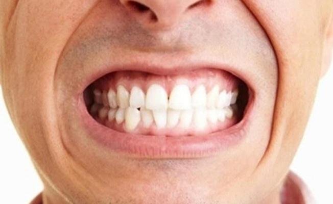 Geceleri diş sıkanlar dikkat!