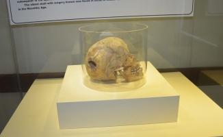 3 bin yıllık kafatasında ameliyat izine rastlandı!