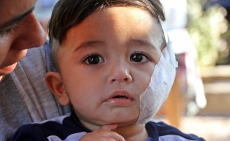Pitbull dehşeti: Baba oğul hastanelik oldular